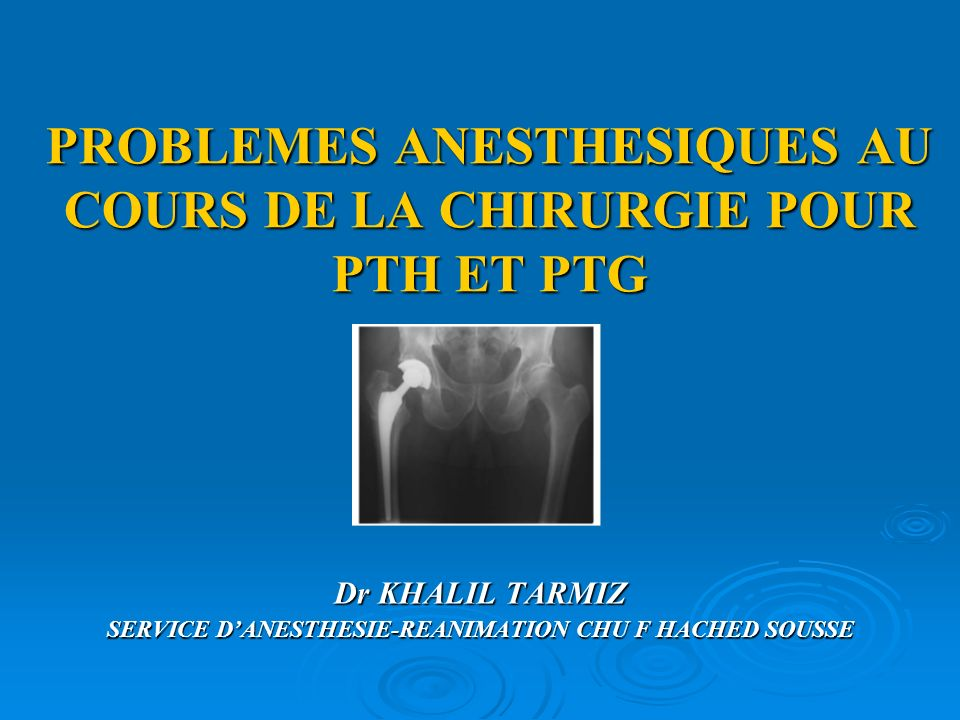 PROBLEMES ANESTHESIQUES AU COURS DE LA CHIRURGIE POUR PTH ET PTG