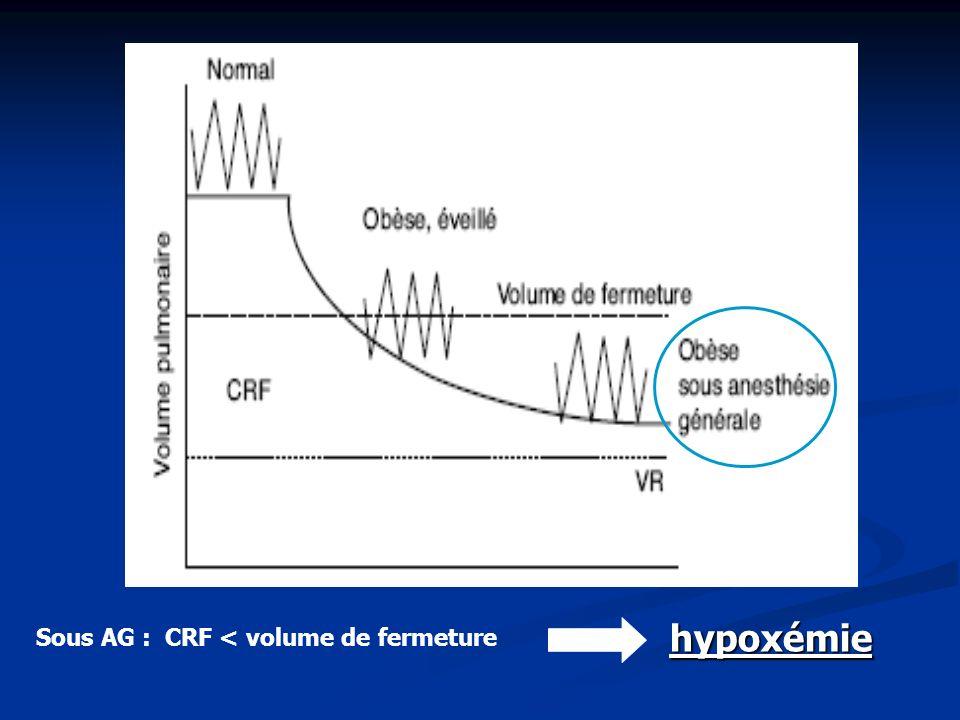 hypoxémie Sous AG : CRF < volume de fermeture