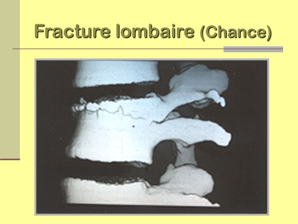 Fracture lombaire (Chance)