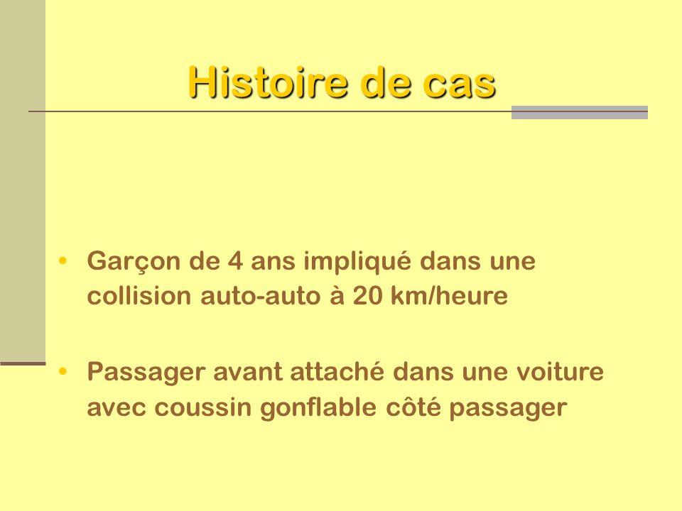 Histoire de casGarçon de 4 ans impliqué dans une collision auto-auto à 20 km/heure.
