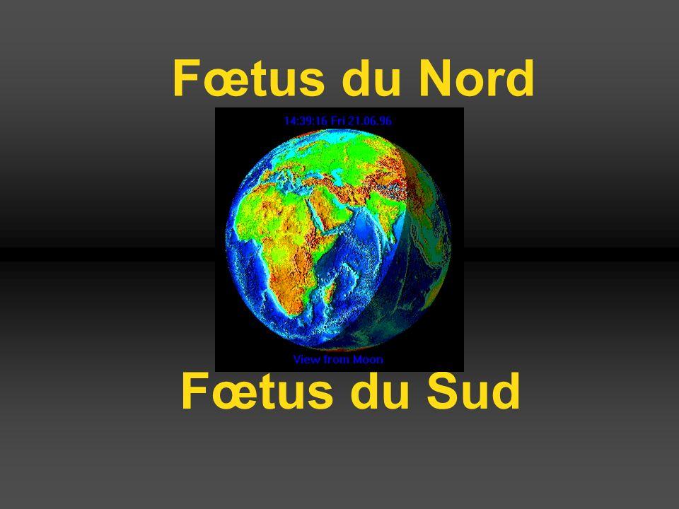 Fœtus du Nord Fœtus du Sud