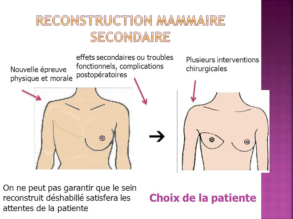Reconstruction mammaire secondaire