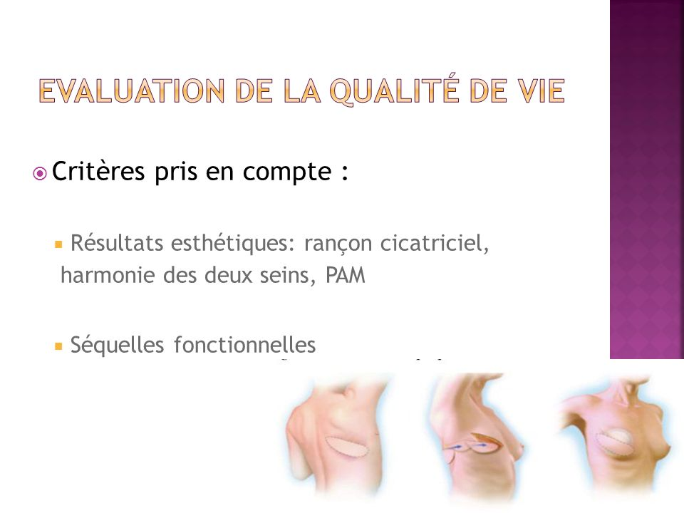 Evaluation de la qualité de vie