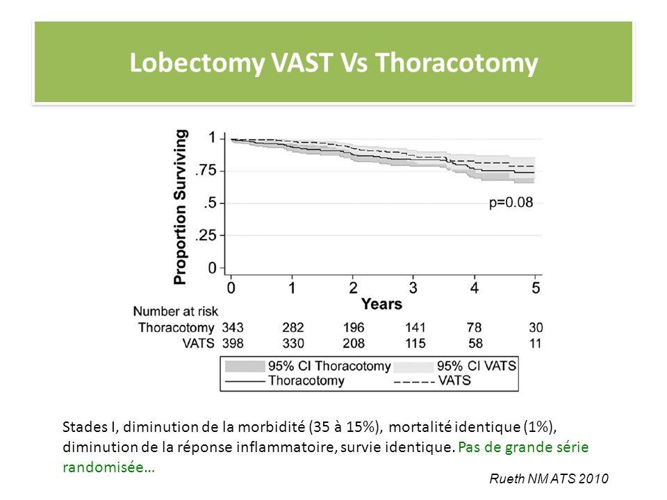 Lobectomy VAST Vs Thoracotomy
