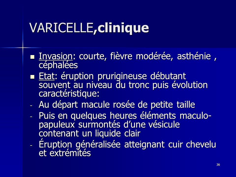 VARICELLE,cliniqueInvasion: courte, fièvre modérée, asthénie , céphalées.