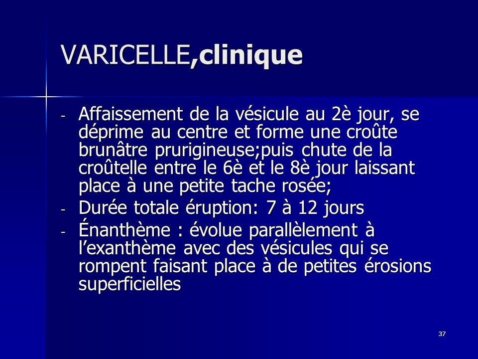VARICELLE,clinique