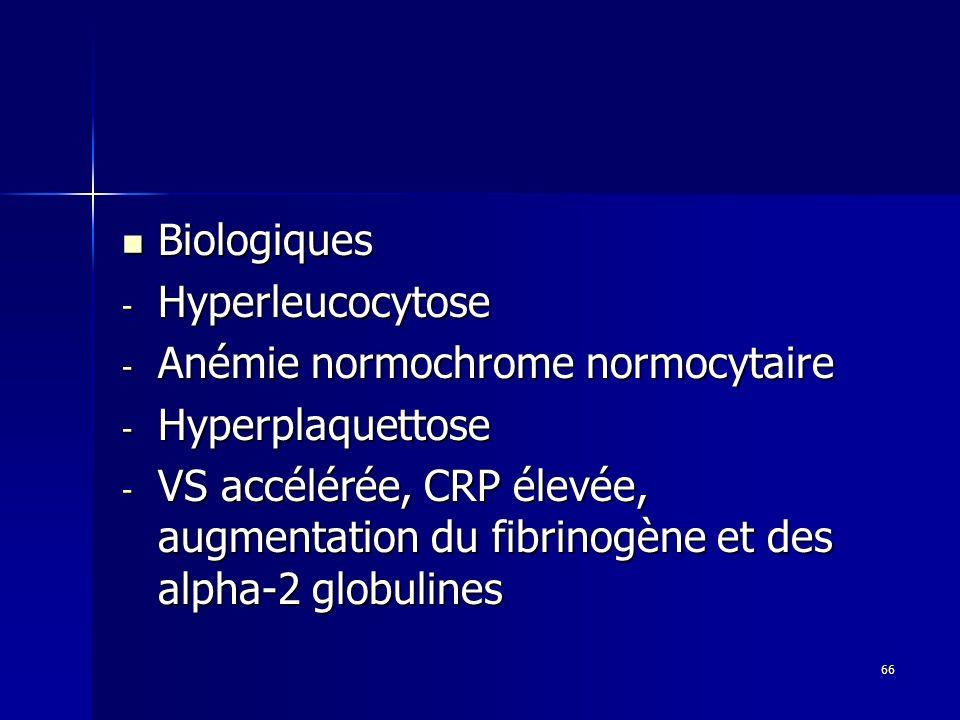 Biologiques Hyperleucocytose. Anémie normochrome normocytaire. Hyperplaquettose.