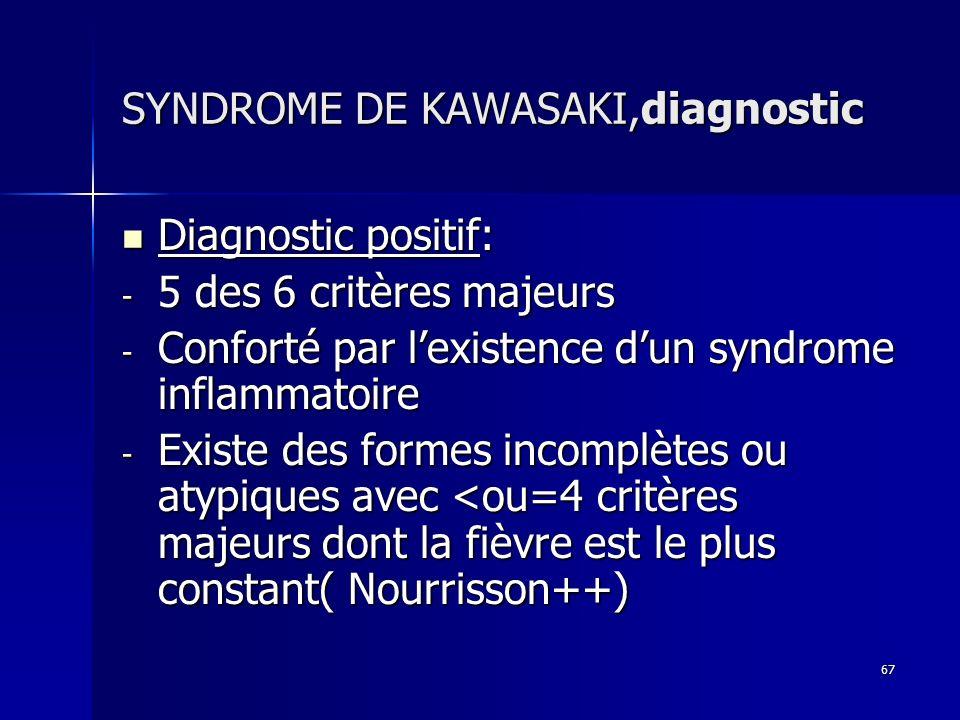 SYNDROME DE KAWASAKI,diagnostic