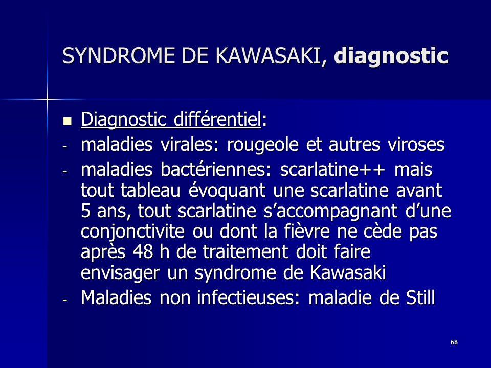 SYNDROME DE KAWASAKI, diagnostic