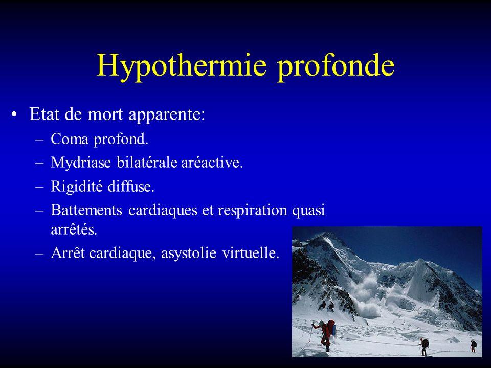 Hypothermie profonde Etat de mort apparente: Coma profond.
