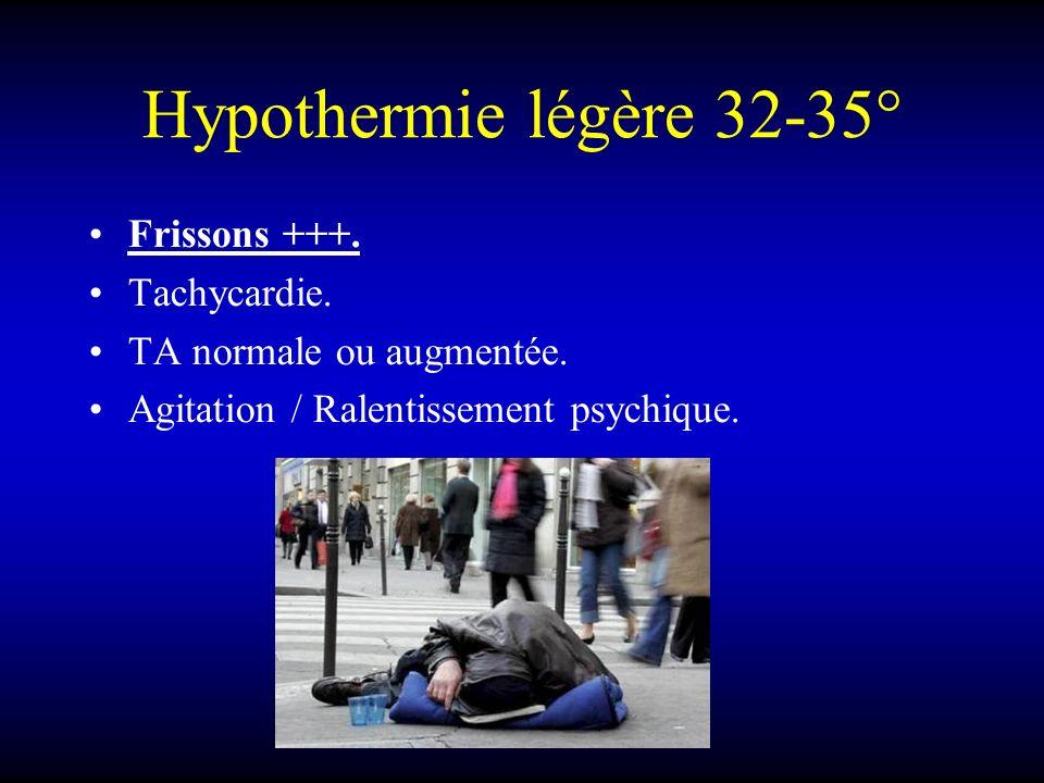 Hypothermie légère 32-35° Frissons +++. Tachycardie.