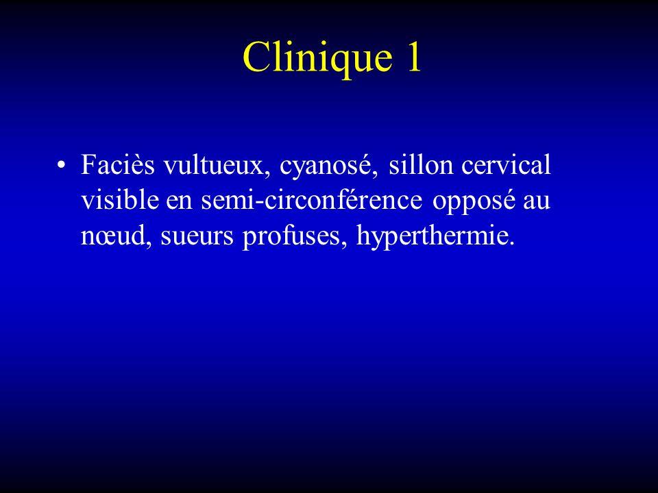 Clinique 1Faciès vultueux, cyanosé, sillon cervical visible en semi-circonférence opposé au nœud, sueurs profuses, hyperthermie.