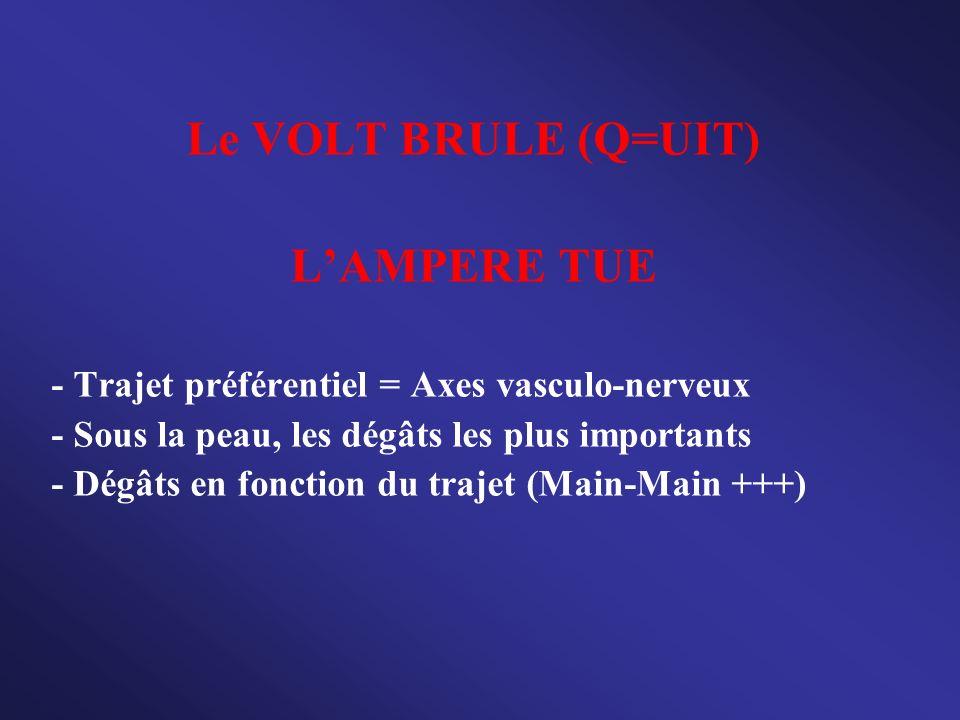Le VOLT BRULE (Q=UIT) L'AMPERE TUE