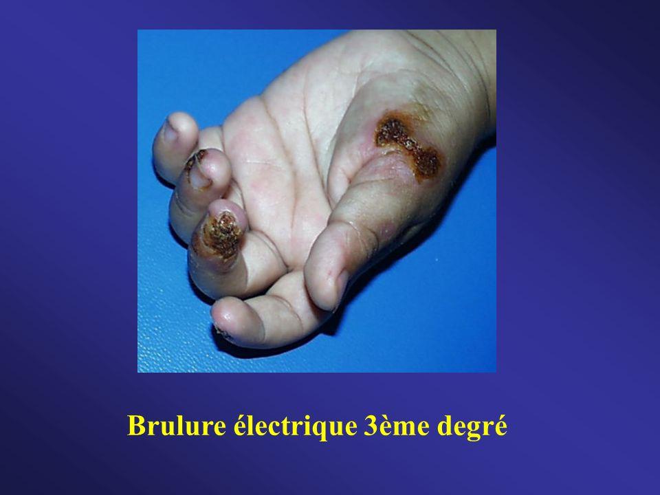 Brulure électrique 3ème degré
