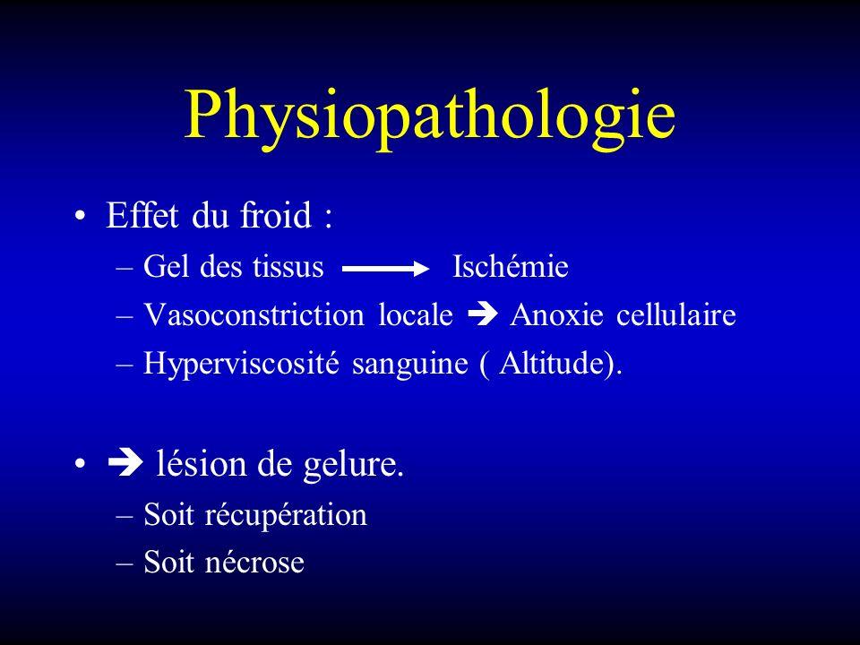 Physiopathologie Effet du froid :  lésion de gelure.