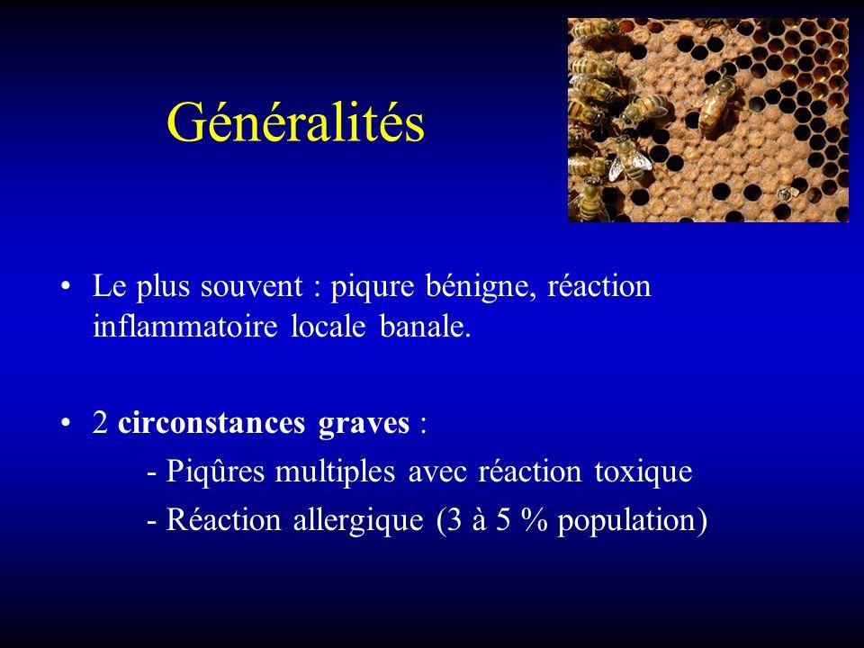 Généralités Le plus souvent : piqure bénigne, réaction inflammatoire locale banale. 2 circonstances graves :