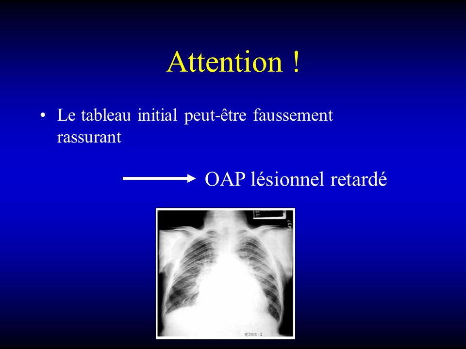 Attention ! OAP lésionnel retardé