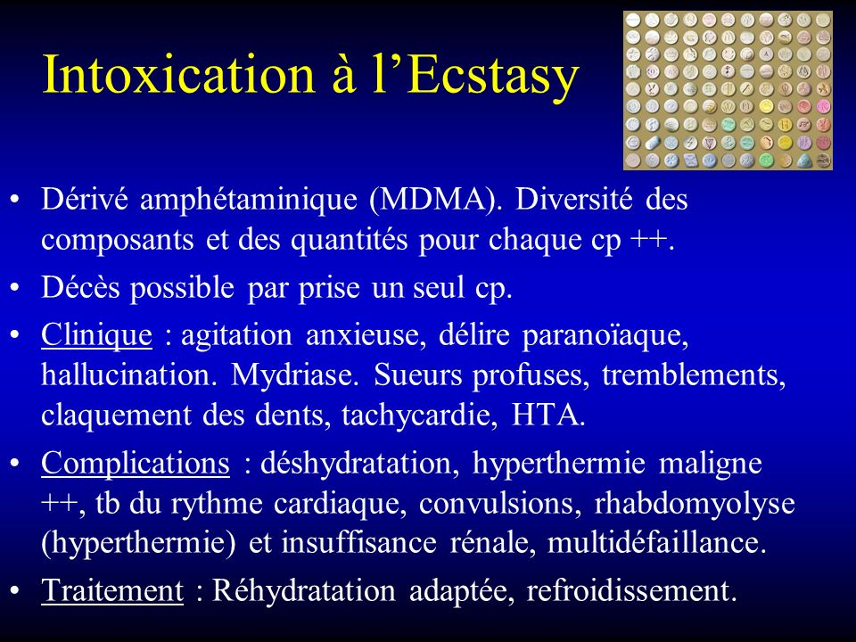 Intoxication à l'Ecstasy