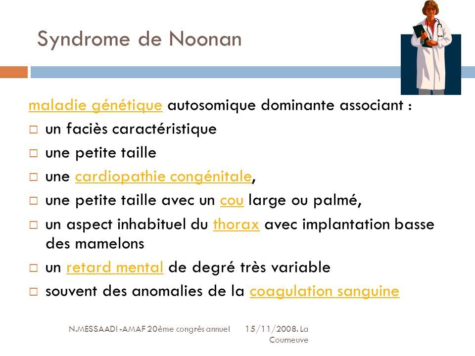 Syndrome de Noonan maladie génétique autosomique dominante associant :