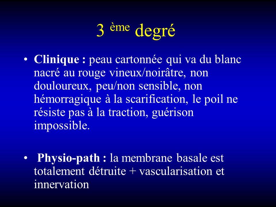 3 ème degré