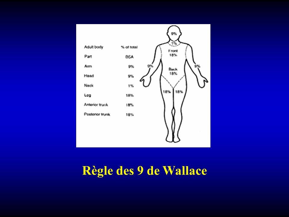 Règle des 9 de Wallace