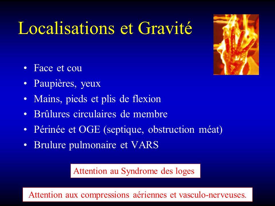 Localisations et Gravité