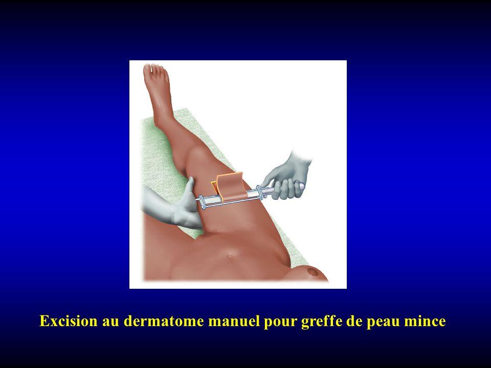 Excision au dermatome manuel pour greffe de peau mince