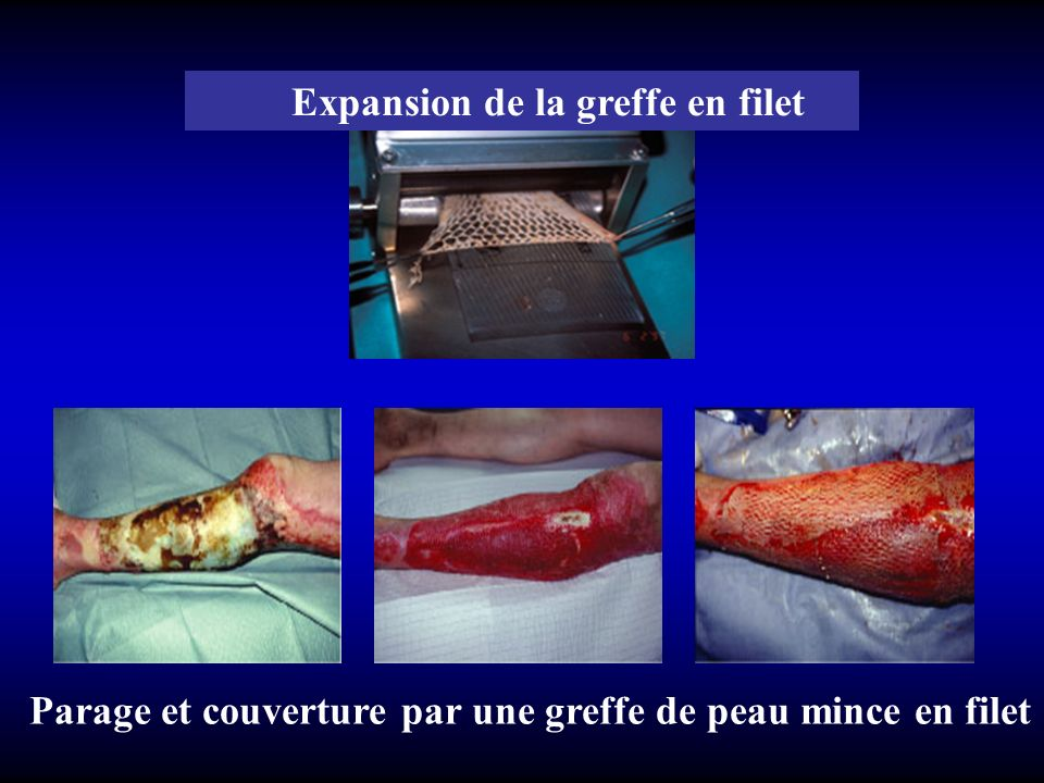 Expansion de la greffe en filet