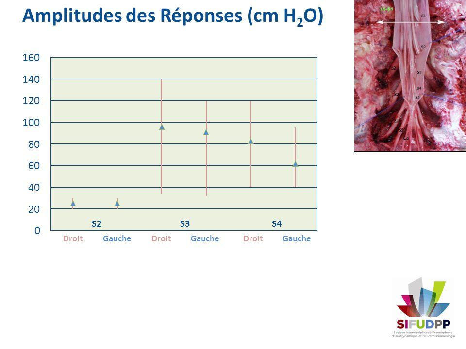 Amplitudes des Réponses (cm H2O)