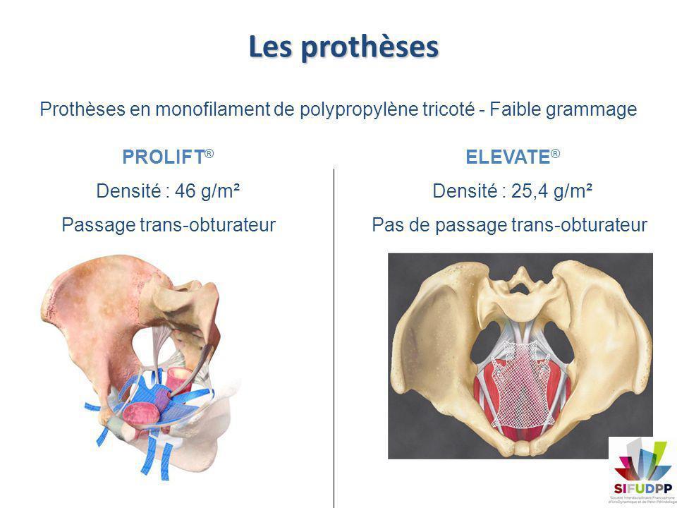 Les prothèses Prothèses en monofilament de polypropylène tricoté - Faible grammage. PROLIFT® Densité : 46 g/m².