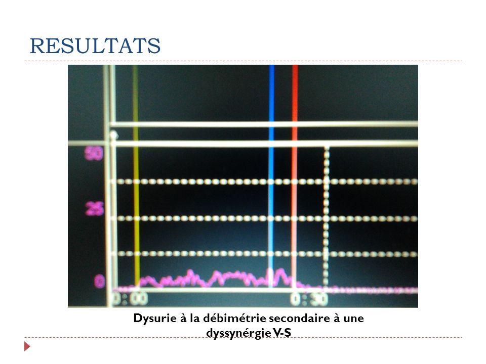Dysurie à la débimétrie secondaire à une dyssynérgie V-S