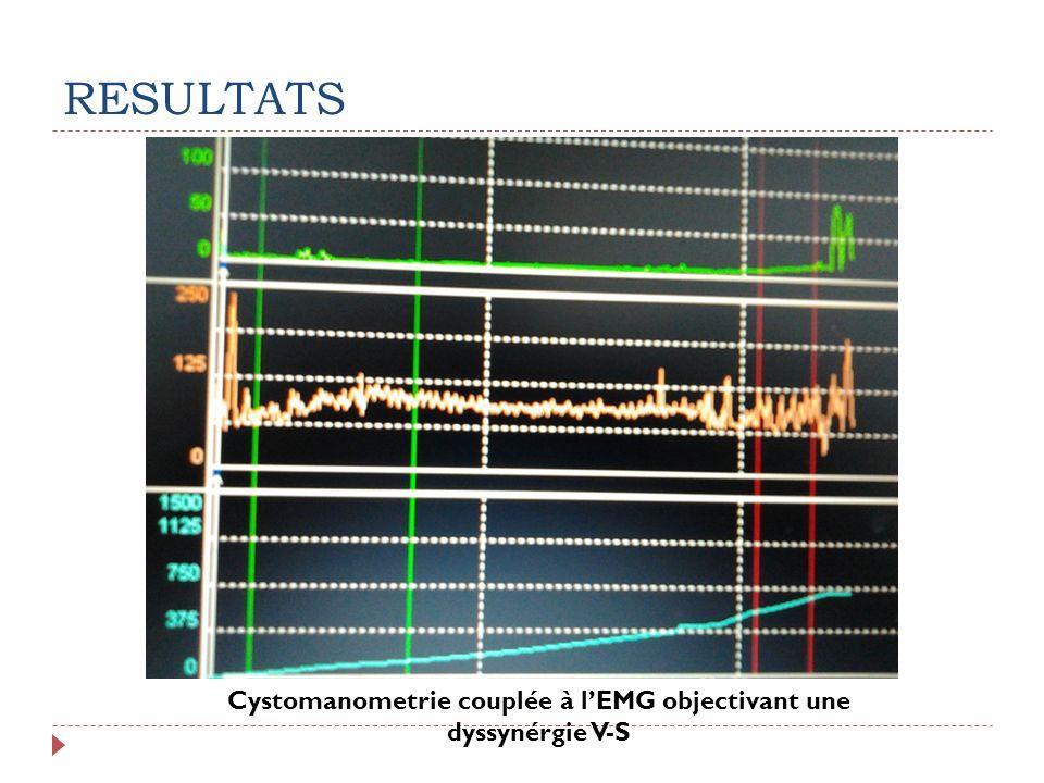 Cystomanometrie couplée à l'EMG objectivant une dyssynérgie V-S