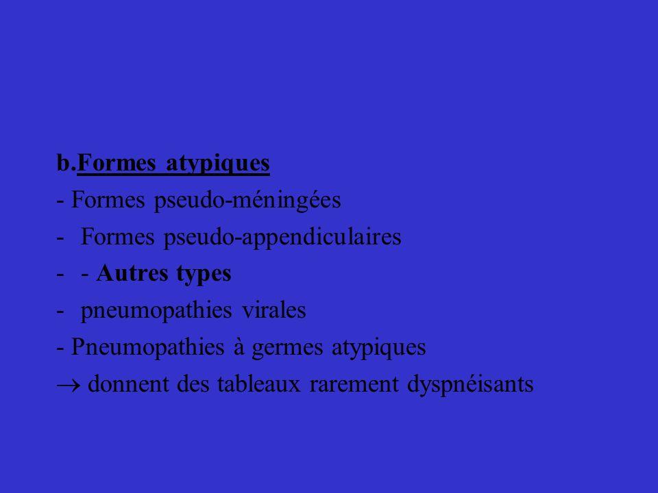 b.Formes atypiques- Formes pseudo-méningées. Formes pseudo-appendiculaires. - Autres types. pneumopathies virales.