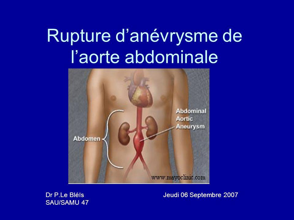 Rupture d'anévrysme de l'aorte abdominale