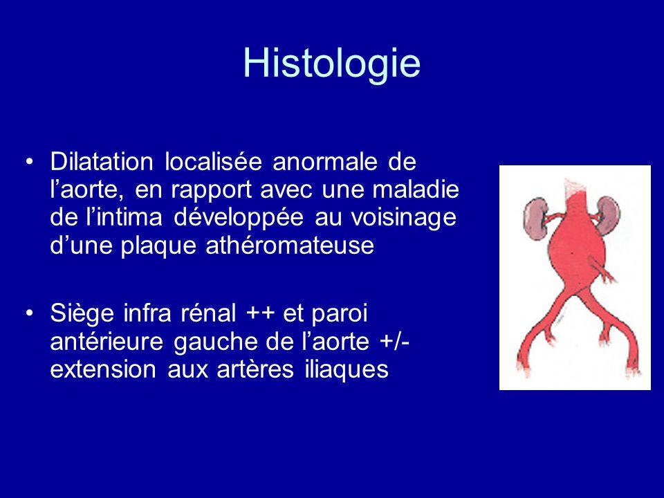Histologie Dilatation localisée anormale de l'aorte, en rapport avec une maladie de l'intima développée au voisinage d'une plaque athéromateuse.