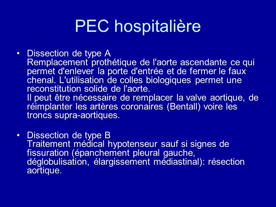 PEC hospitalière