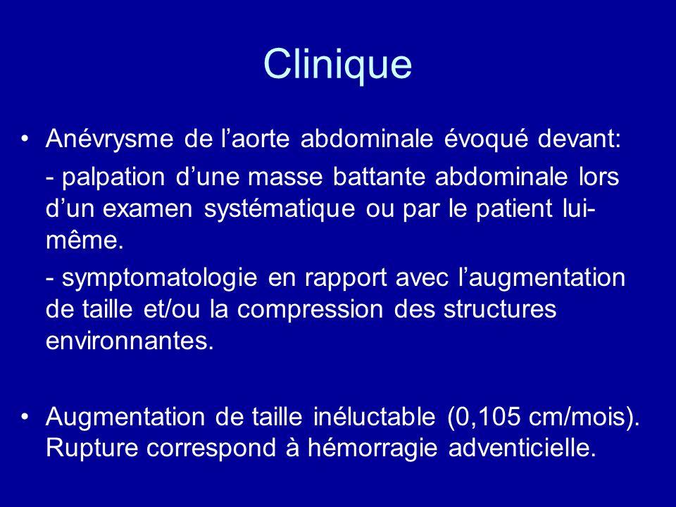 Clinique Anévrysme de l'aorte abdominale évoqué devant: