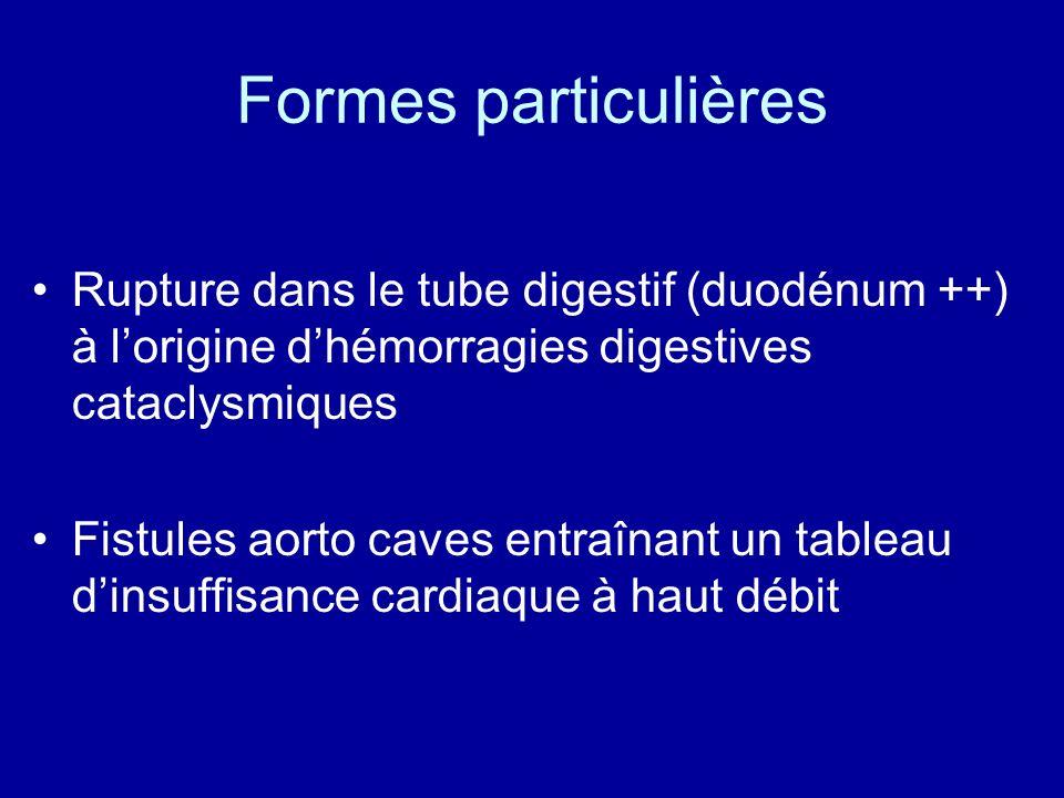 Formes particulières Rupture dans le tube digestif (duodénum ++) à l'origine d'hémorragies digestives cataclysmiques.