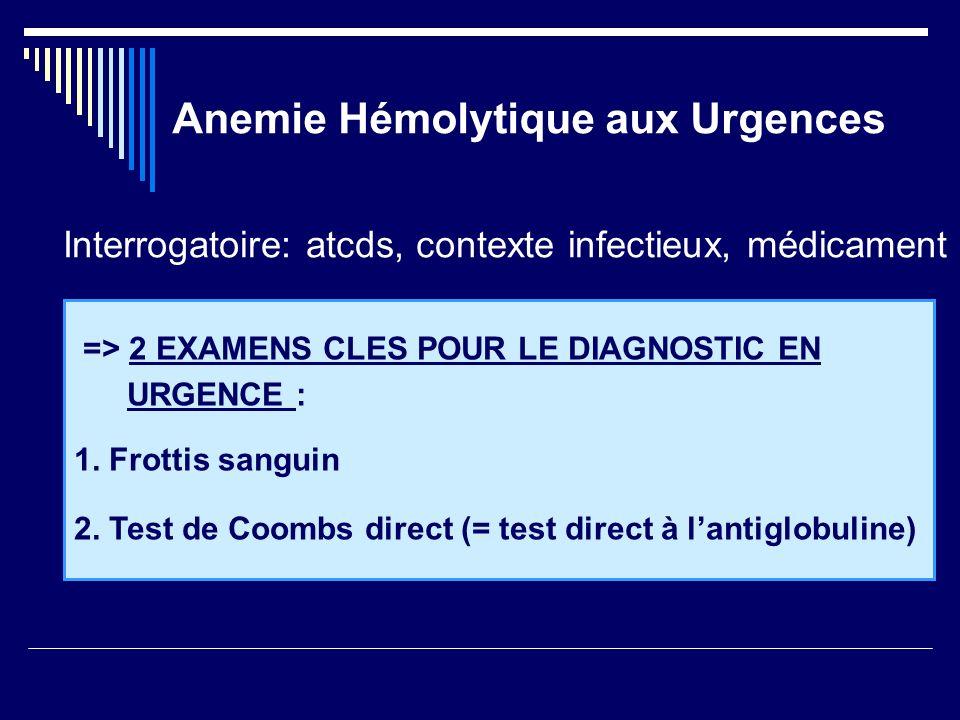 Anemie Hémolytique aux Urgences