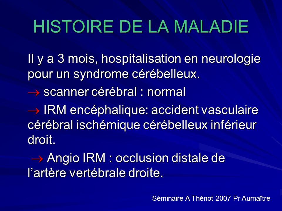 HISTOIRE DE LA MALADIE Il y a 3 mois, hospitalisation en neurologie pour un syndrome cérébelleux.  scanner cérébral : normal.