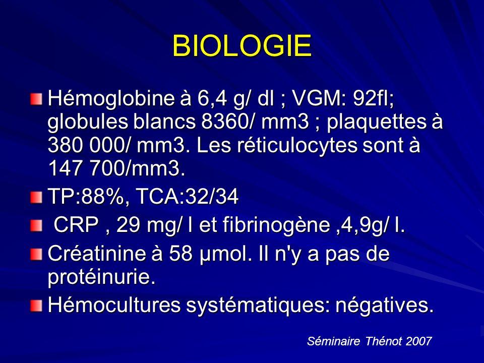 BIOLOGIE Hémoglobine à 6,4 g/ dl ; VGM: 92fl; globules blancs 8360/ mm3 ; plaquettes à 380 000/ mm3. Les réticulocytes sont à 147 700/mm3.