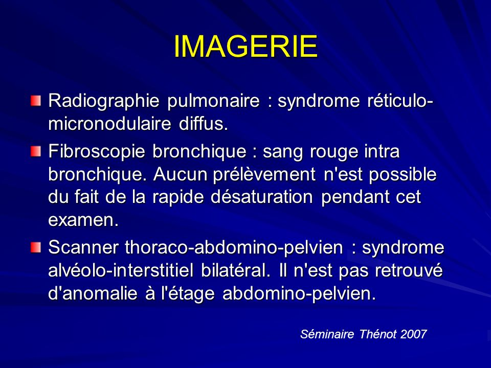 IMAGERIE Radiographie pulmonaire : syndrome réticulo-micronodulaire diffus.