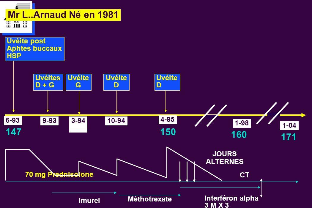 Mr L..Arnaud Né en 1981 150 160 147 171 Uvéite post Aphtes buccaux HSP