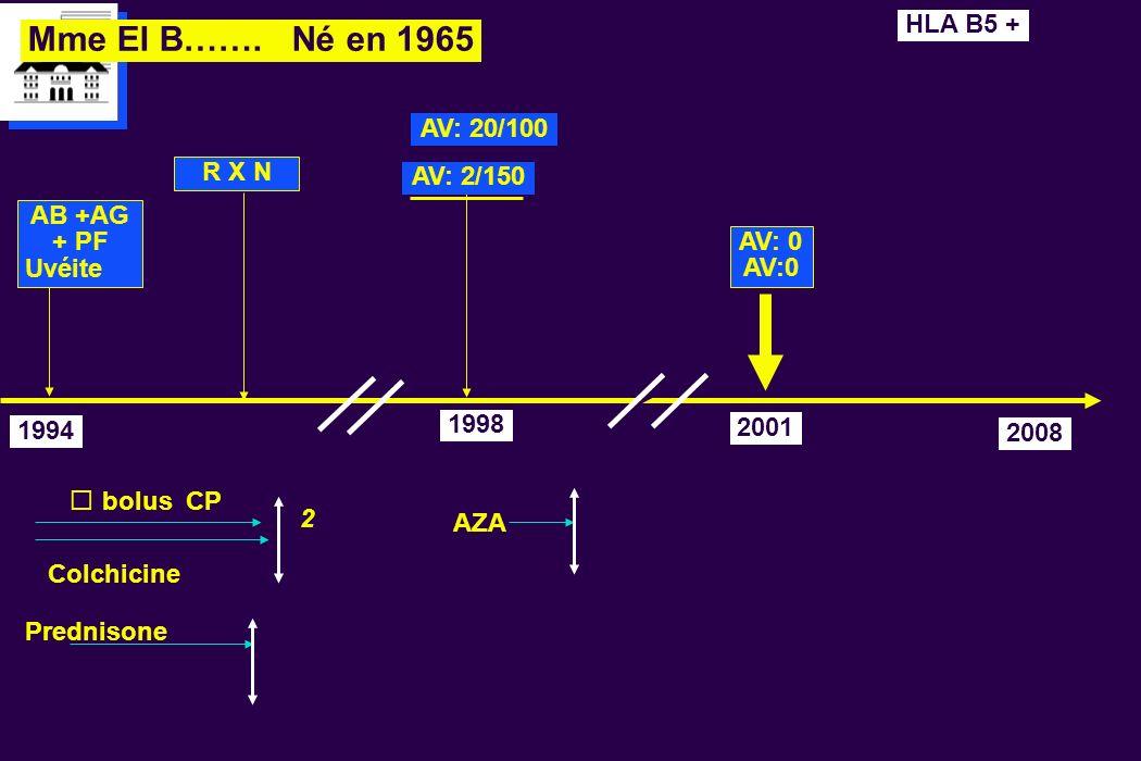 Mme El B……. Né en 1965 HLA B5 + AV: 20/100 R X N AV: 2/150 AB +AG + PF