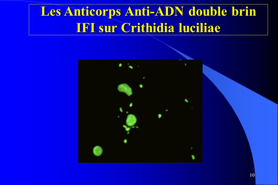 Les Anticorps Anti-ADN double brin IFI sur Crithidia luciliae