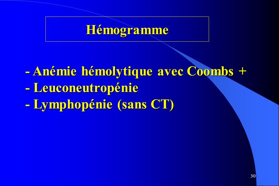 Hémogramme - Anémie hémolytique avec Coombs + - Leuconeutropénie - Lymphopénie (sans CT)