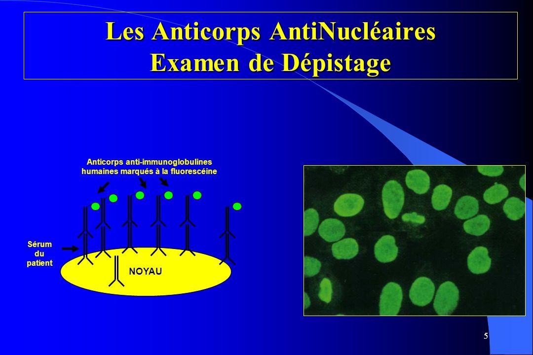 Les Anticorps AntiNucléaires Examen de Dépistage