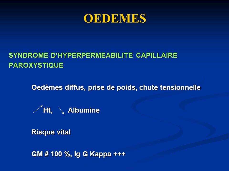 OEDEMES SYNDROME D'HYPERPERMEABILITE CAPILLAIRE PAROXYSTIQUE