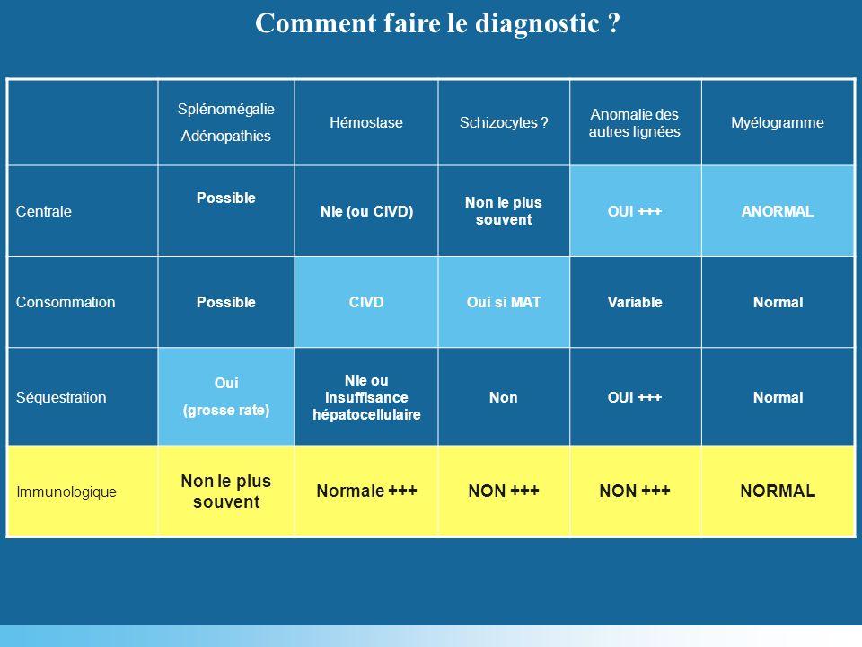 Comment faire le diagnostic Nle ou insuffisance hépatocellulaire