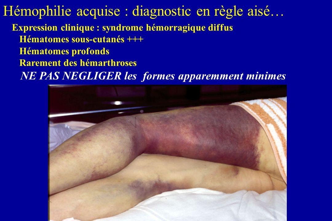 Hémophilie acquise : diagnostic en règle aisé…